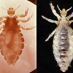 The human head louse, left, and body louse, right, are the same species, but differ in their ability to transmit disease to their host. Researchers now think they know why.