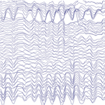 Those whose brain waves oscillated most powerfully in the alpha spectrum (about 10 times per second) when measured at the front of the head (left EEG readout) tended to learn at a faster rate than those whose brain waves oscillated with less power (readout on the right), the researchers found.