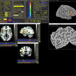 In a video, Aron Barbey discusses his work linking specific brain injuries, seen here in a brain scan, to impairment on particular cognitive functions.