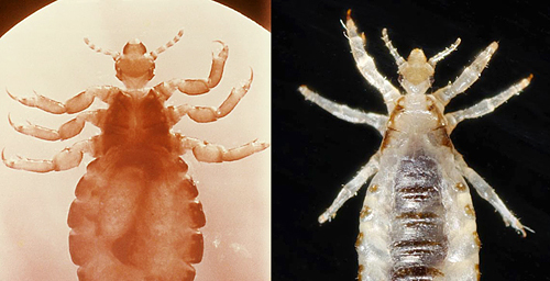 The head louse, left, and body louse, right, differ in habits, habitat and in their ability to transmit disease, but a new genetic analysis indicates they are likely the same species.