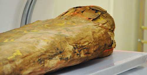 A team of medical experts and researchers presented new findings on the Spurlock Museum mummy - a child from a wealthy family in the Roman period of ancient Egypt. - at a symposium Nov. 2. The mummy was received CT scans in 1990 and again this summer.
