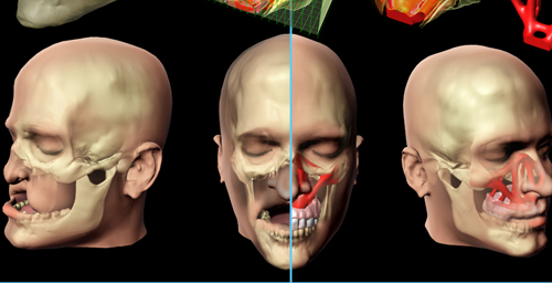Using engineering design methods, researchers model custom bone replacement implants for facial reconstruction surgery.
