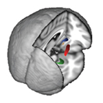MRI scans reveal the brain structures analyzed in this study: nucleus accumbens (orange), putamen (red), caudate nucleus (blue), and hippocampus (green).