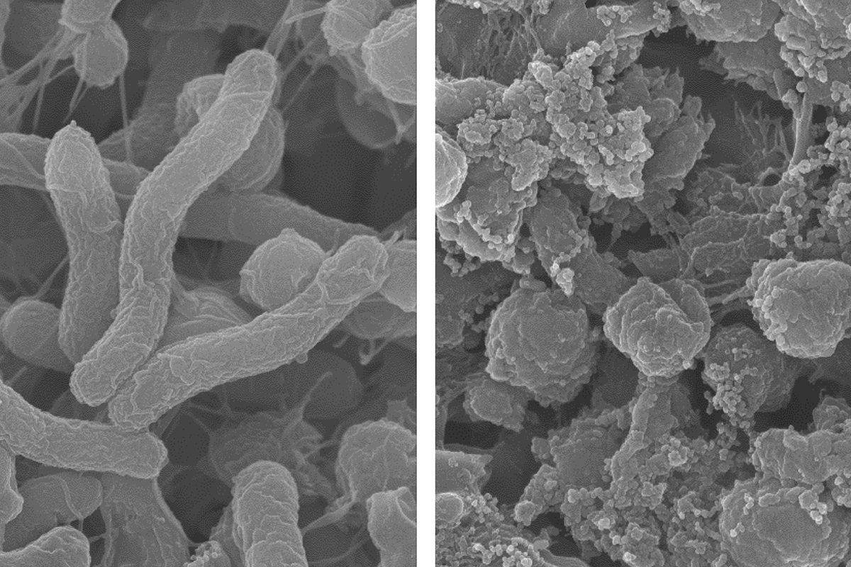 At normal tissue pH (left), the polymer does not kill bacteria. But in an acidic environment (right), it disrupts the H. pylori bacteria's membranes to kill it.