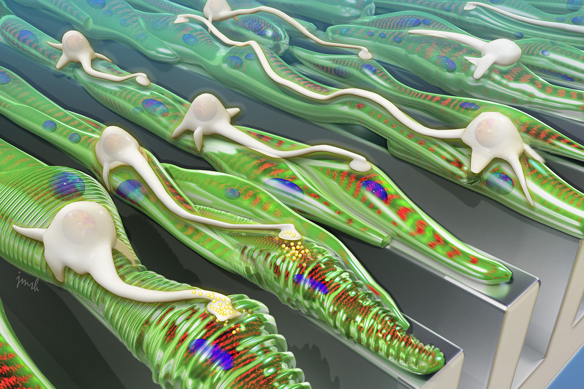 As shown in this artist's rendering, grooved surfaces help muscle grow into aligned fibers, which provides a track for neurons to follow.