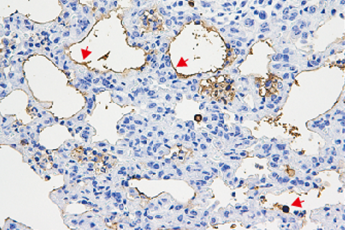 Lung tissue from mice with pulmonary fibrosis that were infected with corisin-secreting bacteria showed signs of acute exacerbation and lung tissue death.